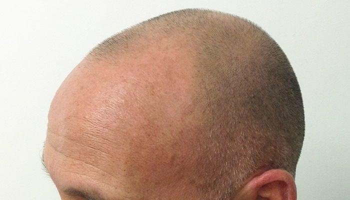 Tricopigmentation Cheveux Temoignages Et Avis Jennifer Glomaud