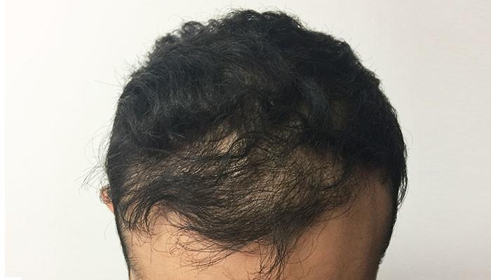 Micropigmentation Cheveux Temoignages Et Avis Proche De Saint