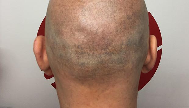 Micropigmentation Cheveux Temoignages Et Avis Proche De
