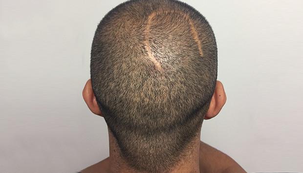 Dermopigmentation Cheveux Temoignages Et Avis Jennifer Glomaud